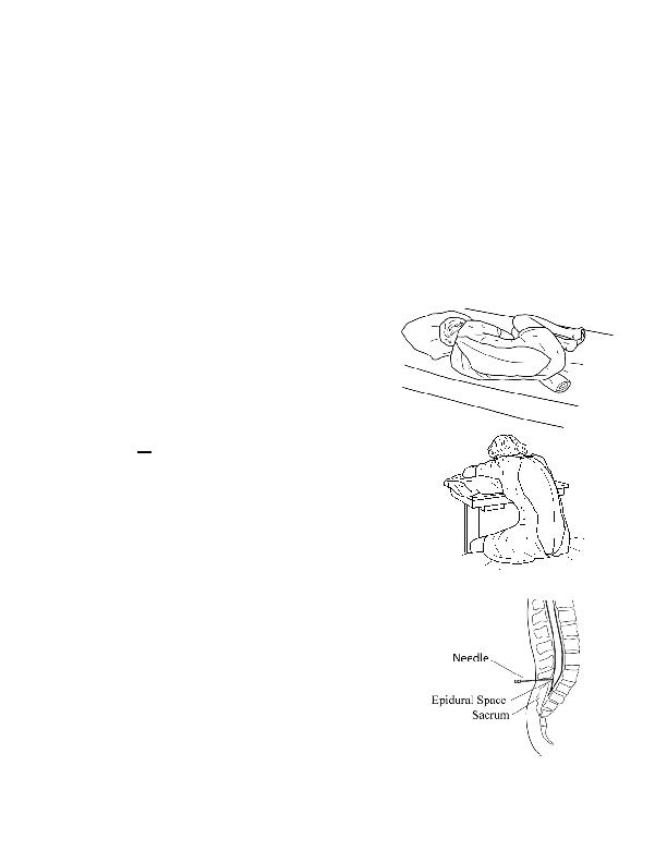 cervical epidural steroids in metastatic vertebra erosions